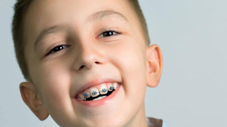 Kết quả hình ảnh cho dễ bị phát hiện ra rằng là họ đang đeo niềng răng