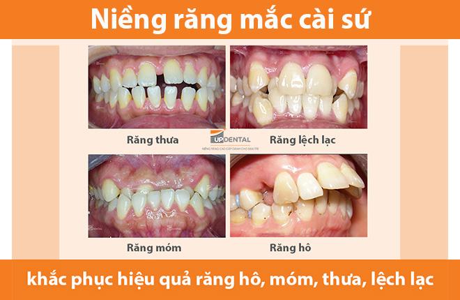 nieng-rang-mac-cai-su