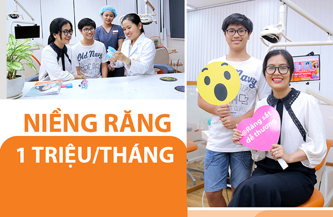 nieng-rang-tra-gop-up-dental