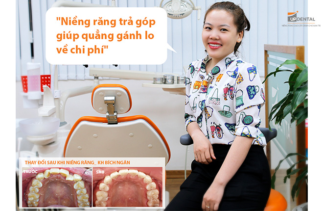 nieng-rang-tra-gop-tai-up-dental
