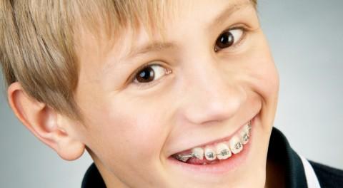 Phương pháp niềng răng cho trẻ em có gì khác biệt?