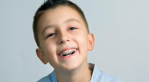 Niềng răng cho trẻ em có cần thiết không?