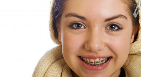Kế hoạch điều trị cho trẻ 6 - 12 tuổi để có hàm răng đẹp