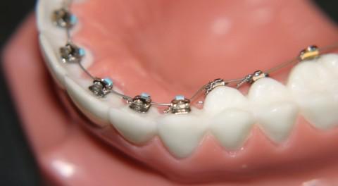 Niềng răng hô mất bao lâu cho hiệu quả chỉnh nha tốt nhất?