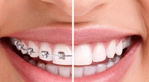 Thời gian niềng răng bao lâu thì có kết quả như mong đợi?