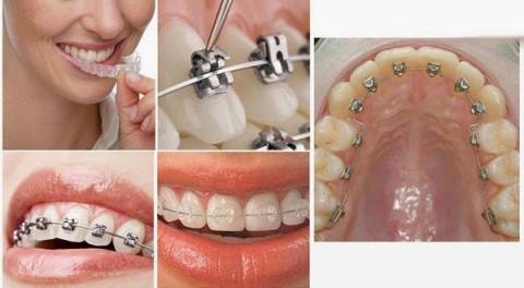 Các loại mắc cài niềng răng mà bạn nên biết