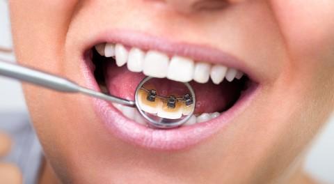 Khám phá các phương pháp niềng răng thẩm mỹ