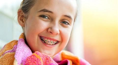 Niềng răng cho trẻ em ở đâu tốt và uy tín tại TP.HCM