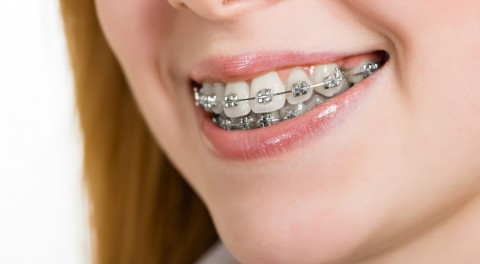 Kết quả hình ảnh cho nhiên độ tuổi khác nhau khi thưc hiện niềng răng