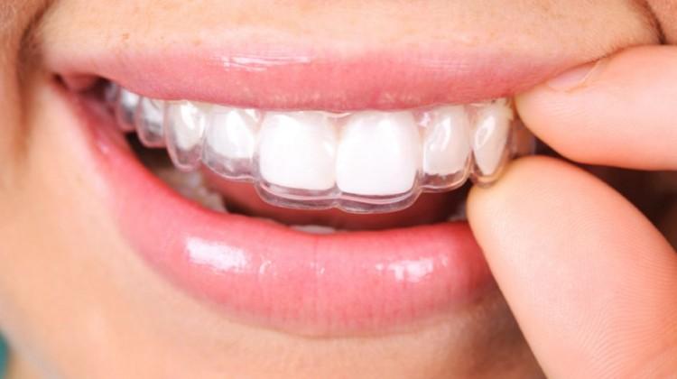 Niềng răng không mắc cài eCligner có hiệu quả không?