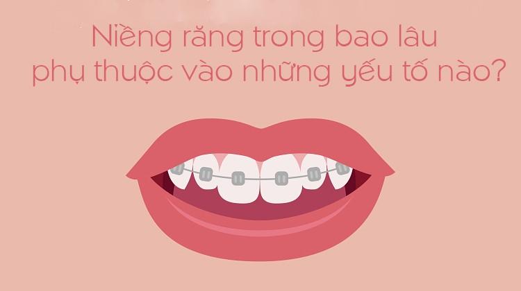 Thời gian niềng răng phụ thuộc vào những yếu tố nào?