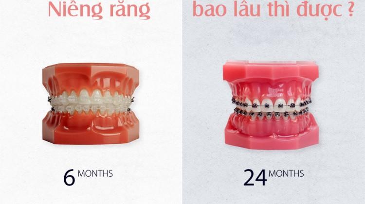 Niềng răng bao lâu thì được kết quả như mong muốn?