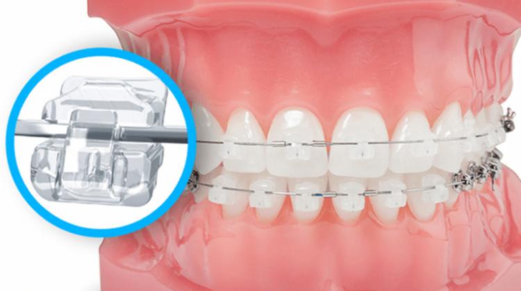 Niềng răng mắc cài sứ tự buộc và những lý do nên lựa chọn