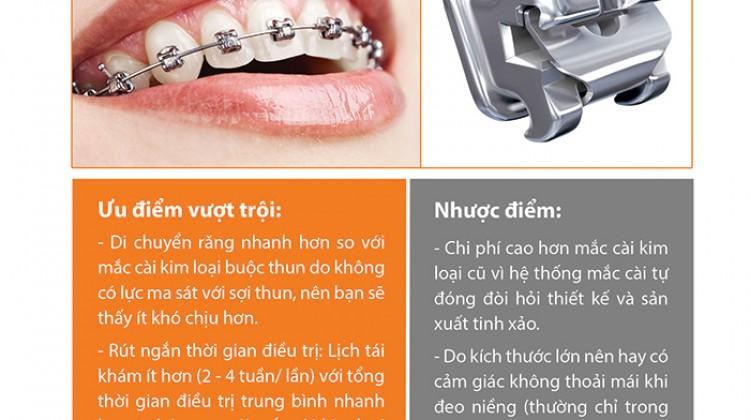 Bảng giá phương pháp niềng răng mắc cài kim loại cao cấp tự khóa