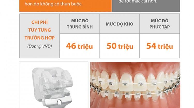 Bảng giá phương pháp niềng răng mắc cài sứ cao cấp tự khóa