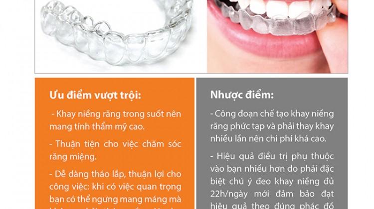 Bảng giá niềng răng không mắc cài eCligner