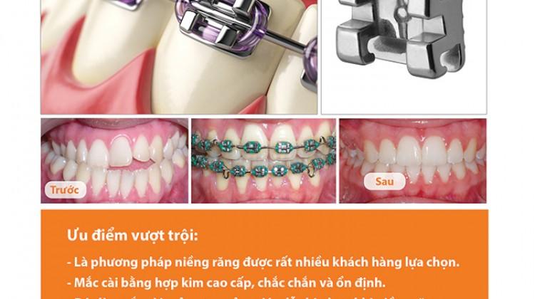 Bảng giá phương pháp niềng răng mắc cài kim loại cao cấp