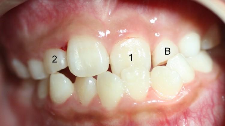 Răng lệch lạc và phương pháp điều trị