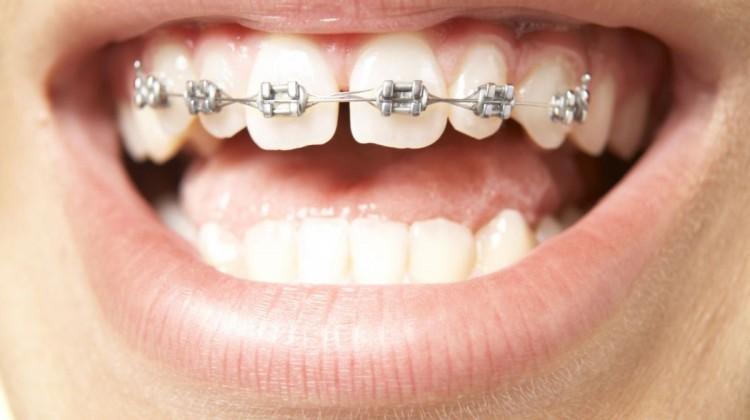 Răng thưa và phương pháp điều trị