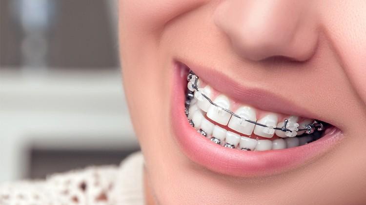 Cái răng cái tóc là góc con người