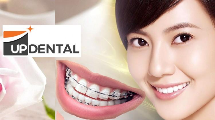 Cảm nhận về dịch vụ niềng răng tại Up Dental của các khách hàng