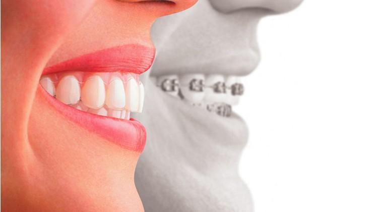 Những điều cần biết về răng hô và phương pháp chữa răng hô