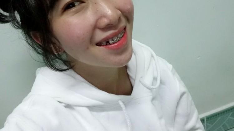 Điều trị răng lệch lạc bằng phương pháp niềng răng
