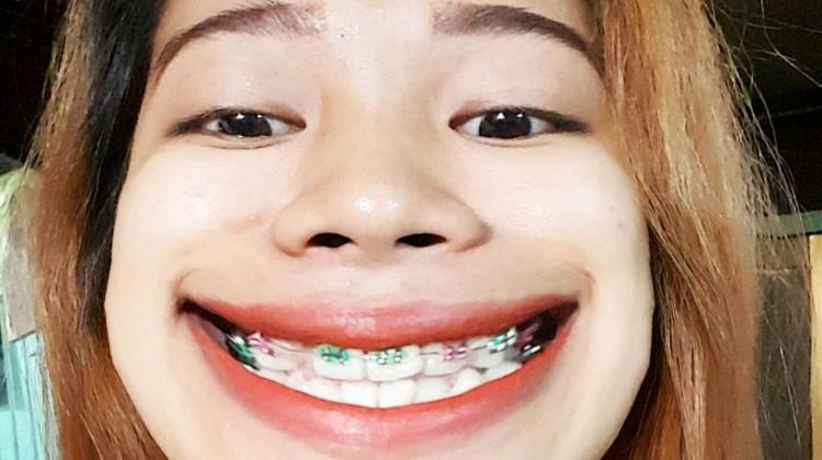 Chia sẻ: Cảm giác khi niềng răng, gắn mắc cài