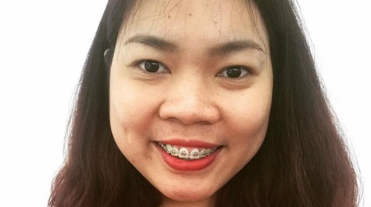Nói tạm biệt với nụ cười mím môi sau khi niềng răng