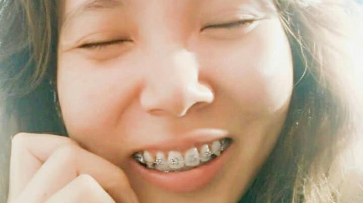 Kết quả hình ảnh cho trong niềng răng nữa mà cũng đóng góp