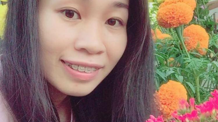 Niềng răng mắc cài nhưng vẫn tự tin cười tươi - Kim Cương