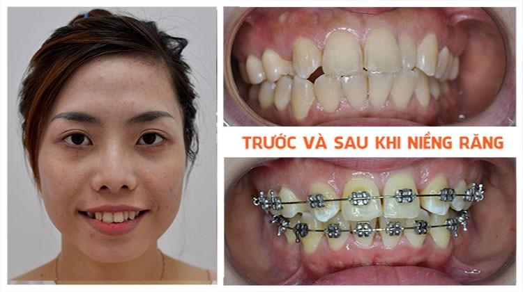 Niềng răng có ảnh hưởng đến hệ thần kinh hay không