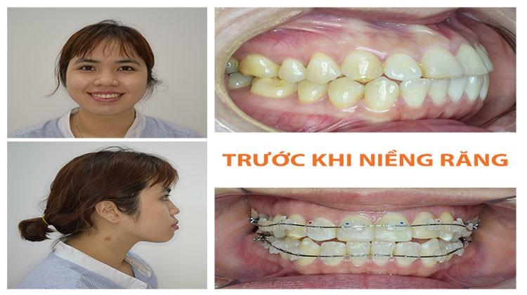 Nha khoa niềng răng chuyên sâu tốt nhất tại Hồ Chí Minh