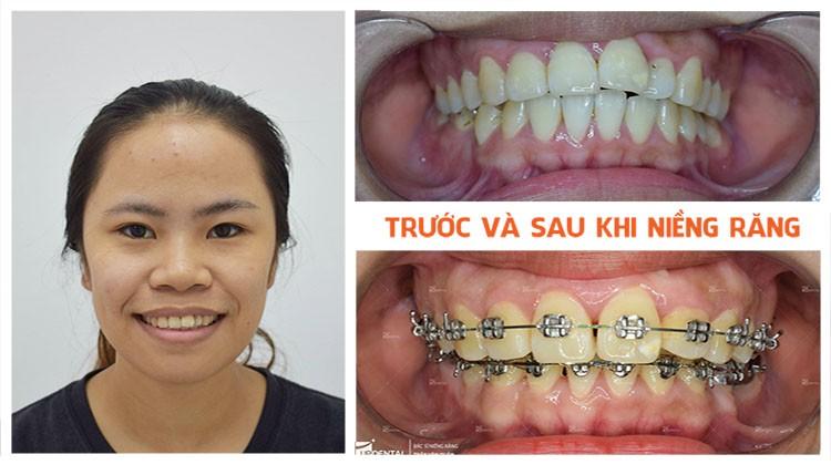 Review kết quả niềng răng tại Nha khoa Up Dental khách hàng Thanh Danh