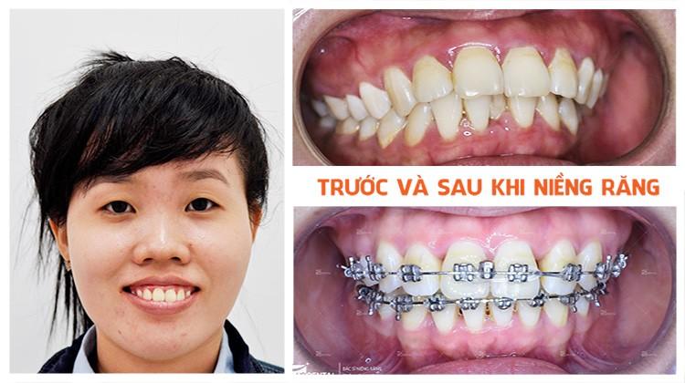 Phương pháp điều trị hô hàm, hô răng tại Nha khoa Up Dental