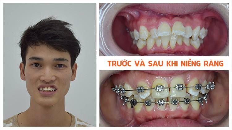 Đẹp lên nhờ niềng răng tại Nha khoa Up Dental Khách hàng Đức Chiển