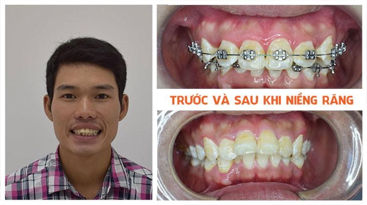 Hiệu quả của niềng răng tại Nha khoa Up Dental khách hàng Đức Chính
