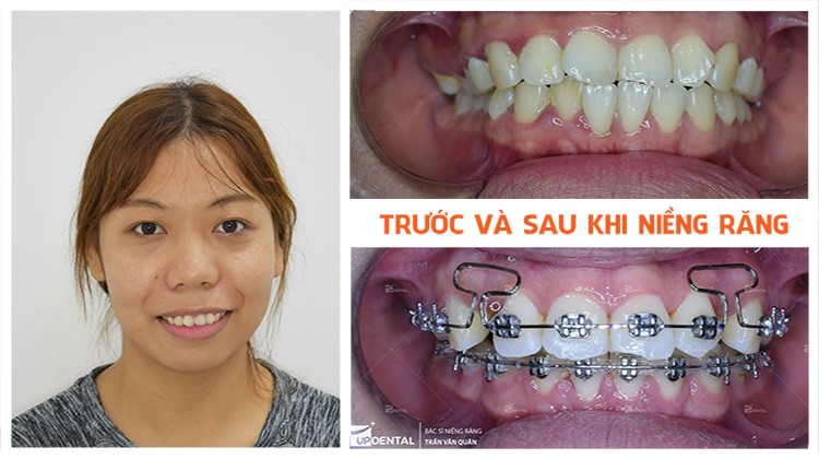 Review niềng răng hô Nha khoa Up Dental khách hàng Thanh Chuyên