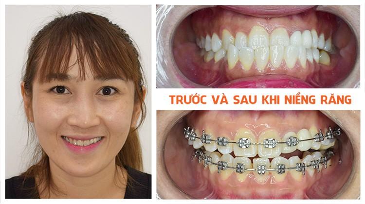 Review niềng răng móm Nha khoa Up Dental khách hàng Thanh Trúc