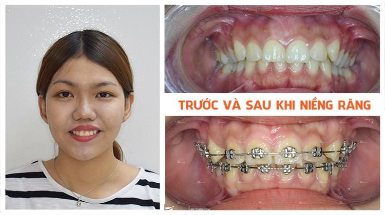 Điều trị cười hở lợi tại Nha khoa Up Dental khách hàng Lan Thanh