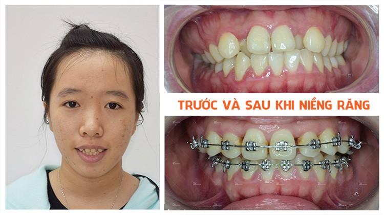 Review niềng răng Nha khoa Up Dental khách hàng Thanh Vân