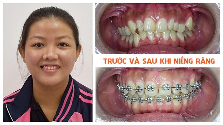 Review niềng răng thưa Nha khoa Up Dental khách hàng Ngọc Nghi