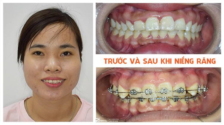 Niềng răng ở đâu tốt và kinh nghiệm của khách hàng Nguyễn Thị Thảo