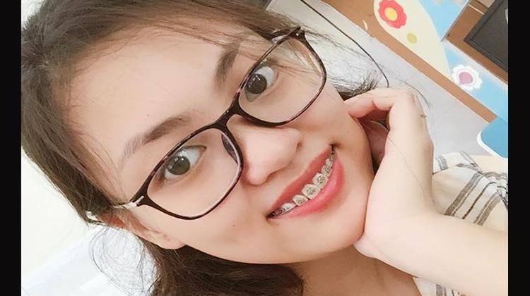 Review kết quả niềng răng thưa, răng hô tại Nha khoa Up Dental