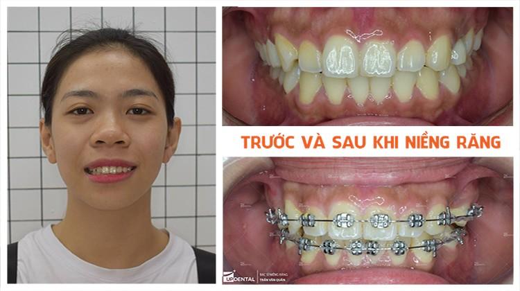 Chi phí niềng răng - niềng răng trả góp