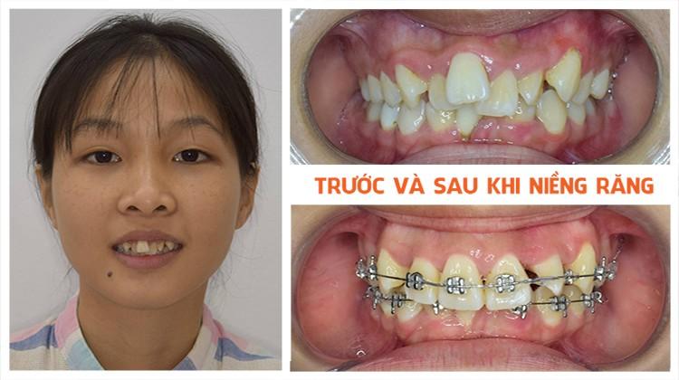 Niềng răng trả góp Nha khoa Up Dental khách hàng Bích Phương