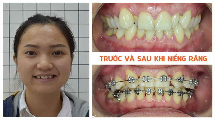 Niềng răng uy tín tại Hồ Chí Minh Up Dental khách hàng Nguyễn Minh