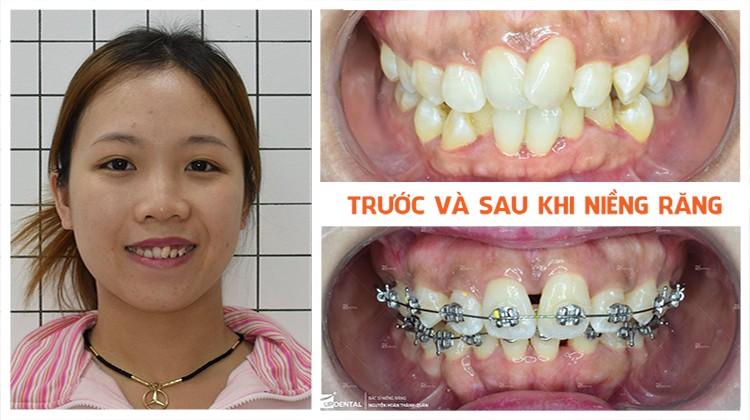 Review hiệu quả rõ rệt khi niềng răng lệch lạc tại Up Dental