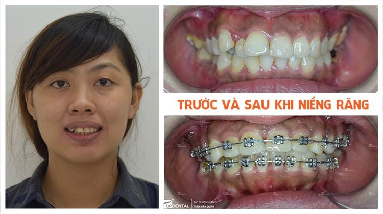 Review Up Dental khách hàng Cẩm Vi niềng răng 13 tháng