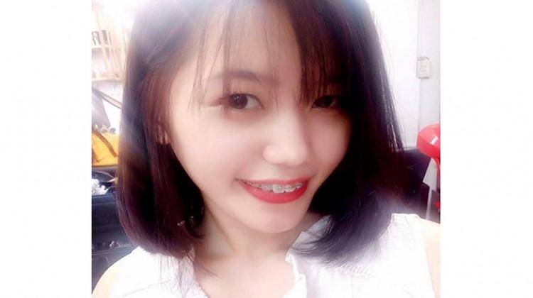 Chia sẻ: Ba giai đoạn then chốt khi niềng răng - Trình Thị Huệ
